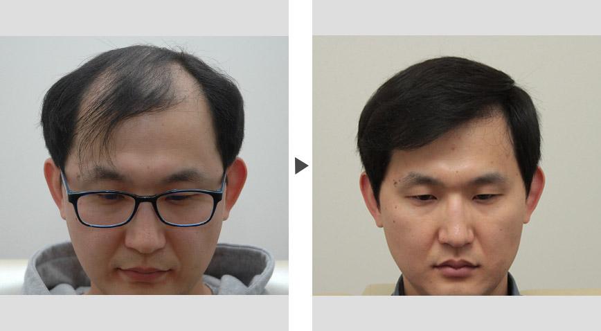 脱发,头发稀疏为什么要选择植发?